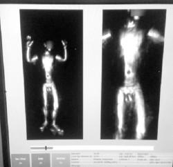 Imagen-escáner-socofar-2-e1435958001889